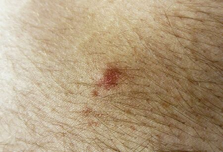 Red immature pimple on the skin of a white person. Separate hairs growing from hair follicles are present.