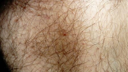pimple or mole on the skin of a person of a white race, profuse body hair