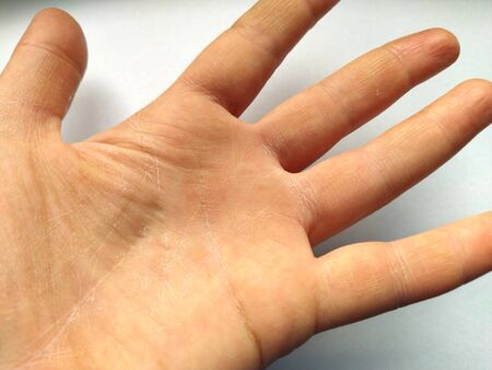 Female hand with dry atopic skin. White background. Close-up of the skin on the palm and fingers. Derma in need of care and hydration. Wrinkles, dryness and irritation on the palm lines.