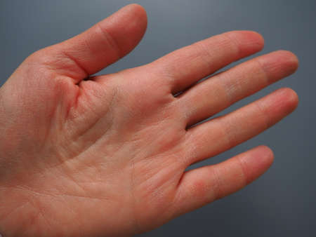 Female hand with dry atopic skin. White background. Close-up of the skin on the palm and fingers. Dermatological problems. Fortune telling by the lines on the hand, palmistry. Stock fotó