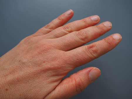 Female hand with dry atopic skin. White background. Close-up of the skin on the palm and fingers. Derma in need of care and hydration. Dermatological problems. Unpainted natural nails.