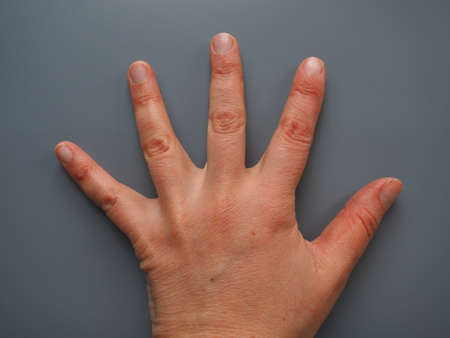 Spread 5 fingers. Female hand with dry atopic skin. White background. Close-up of the skin on the palm and fingers. Derma in need of care and hydration. Dermatological problems. Gray background Stock fotó
