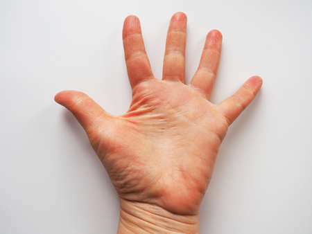 Hand palm on white background. Raised up hand palm to the viewer. Vote sign asking for help. Fortune telling on the lines in the palm of your hand, palmistry. Dermatological problems, dehydrated skin. Stock fotó