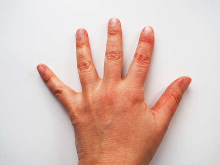 Hand on white background. Raised up hand. Vote sign asking for help. Dermatological problems, dry dehydrated skin. Hand gesture.
