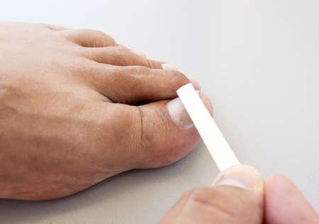 in disrepair: unghie limatura podologo in rovina