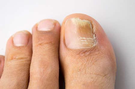 pies masculinos: onicomicosis con la infección por hongos en las uñas
