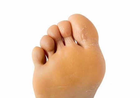fußsohle: durch Überhitzung des Sommers geknackt Sohle Fuß Lizenzfreie Bilder