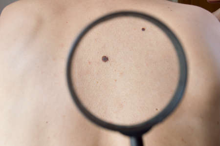 examining melanoma on a back of man with magnifying glass