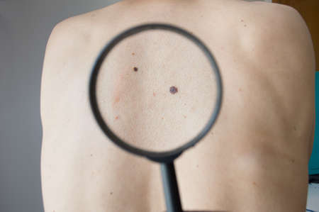 health dangers: checking melanoma on a back of a man with magnifying glass