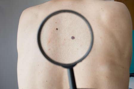 het controleren van melanoom op een achterkant van een man met een vergrootglas