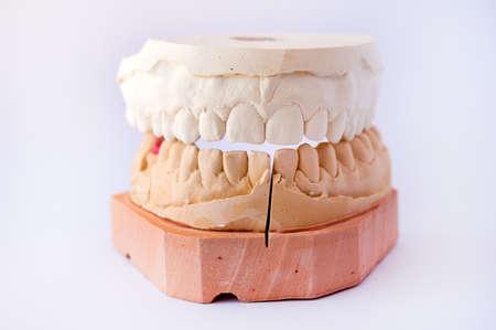 plaster mould: Dental casting gypsum model plaster cast stomatologic human jaws prothetic laboratory