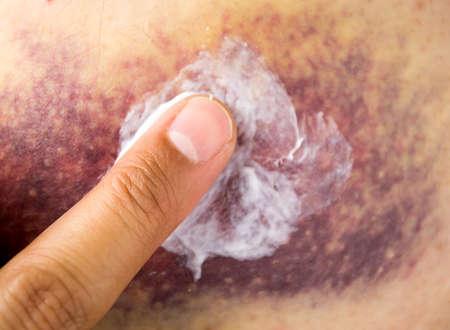Imagen recortada de una mujer joven que pone la crema hidratante en su dedo en un gran hematoma