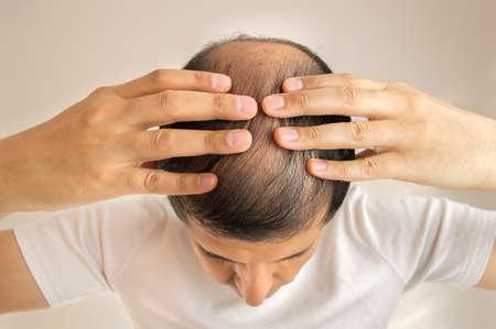 Nahaufnahme des Menschen steuert Haarausfall