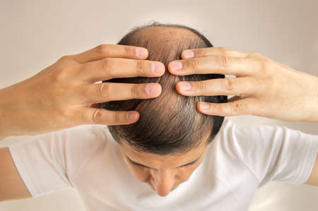 close up of man controls hair loss