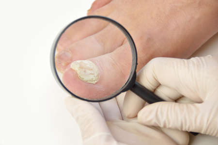 Close up image of left foot toe nail suffering from fungus infection. Checking it with magnifying glass by the medical doctor