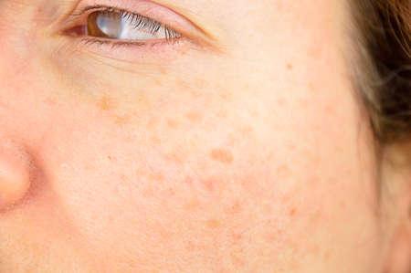 close-up van een vrouw wang met lever spot veroorzaakt door de grote expositie zon Stockfoto