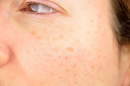 closeup of a woman cheek with liver spot causes by the large exposition sun  Stock Photo