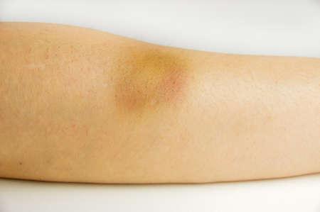 maltrato: primer plano de contusión de bateo en el brazo de la mujer en el fondo blanco Foto de archivo