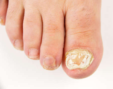 Close up image of left foot toe nail suffering from fungus infection. White background horizontal studio picture 免版税图像