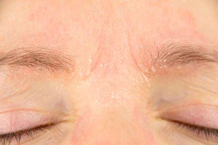 mujer con síntomas de la dermatitis atópica en la frente y las cejas