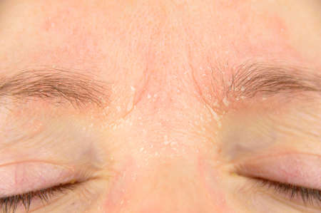 psoriasis: woman with symptom of atopic dermatitis on brow and brows