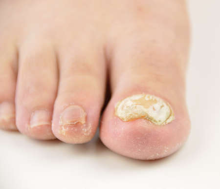 Close up image of left foot toe nail suffering from fungus infection. White background horizontal studio picture Banco de Imagens