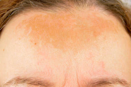 closeup of dermatitis on brow of woman with redness and skin blemishes
