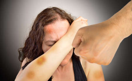 bruised woman covering her face in fear of home violence with a fist of the partner threatening