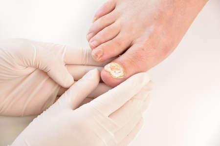 곰 팡이 감염으로 고통받는 왼쪽 발가락 발톱을 검사 podologist의 근접 촬영 이미지. 흰색 배경에 가로 스튜디오 그림입니다. 스톡 콘텐츠
