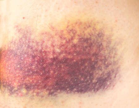maltrato: cerca de hematoma golpeado en la pierna