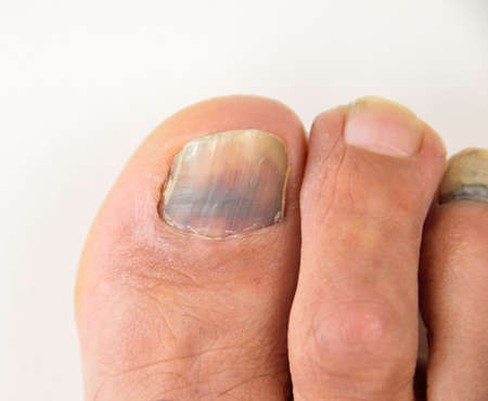 close up of subungual hematoma blue and black toe nail
