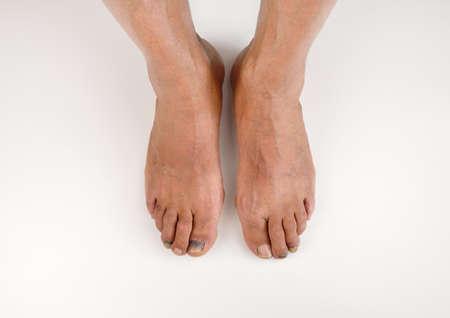 hematoma: High angle shot of a two feet with subungual hematoma blue and black toe nail Stock Photo