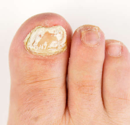 onychomycosis with fungal nail infection on toe isolated over white background