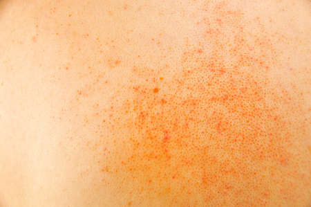 closeup of sick skin with atopic dermatitis Stock Photo