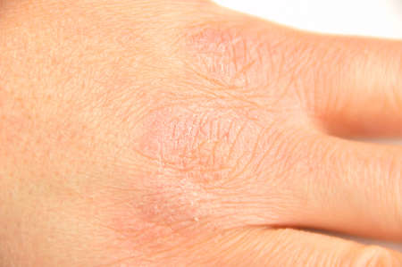 croped shot of hand with very dry skin and deep cracks on knuckles Stock Photo