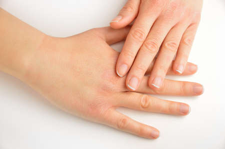 high angle view of hands touching with very dry skin and deep cracks on knuckles over white background