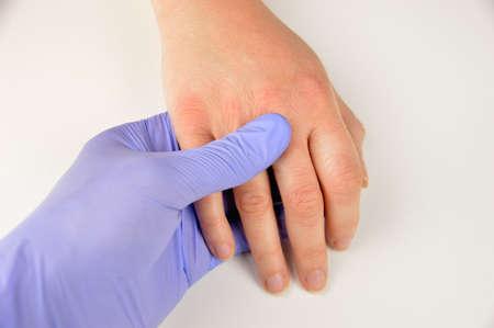 매우 건조한 피부와 깊은 균열을 가진 손을 검사하는 의사의 클로즈업 이미지