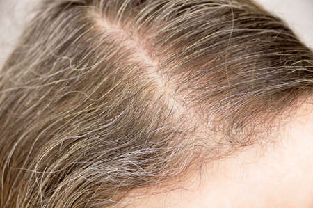 Close-up of woman whit gray hair roots Banque d'images