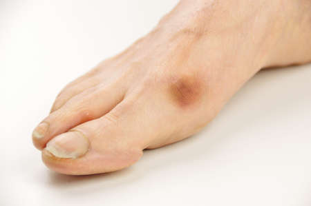 Woman with hallux valgus bunion in foot on white background