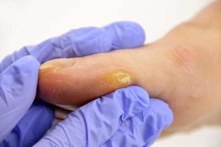 Close-up image of doctor checking the foot callus suffering.Horizontal studio picture on white background. Stock Photo