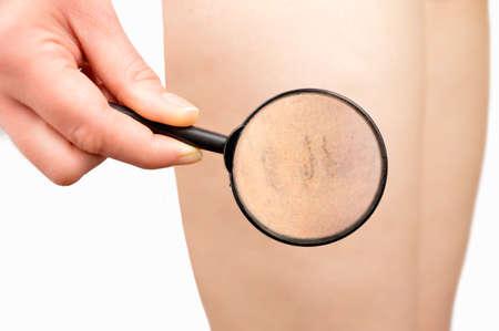 Femme regardant avec une loupe sa veine variqueuse dans la jambe Banque d'images