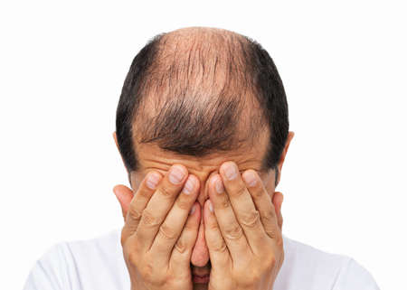 Close-uo of bald man stressed by rapid hair loss against a white background