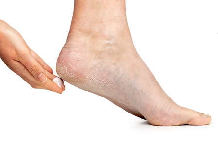 Cropped shot of care for dry skin on the well-groomed feet and heels with creams for the skin and feet