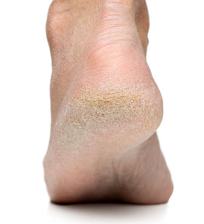 Cracked heel on human foot on white Stockfoto