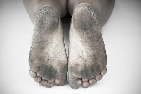 pieds sales: monochrome ou le dos et blanc de pied sale ou talons fendill�s isoler sur fond blanc, de la sant� m�dicale ou les pieds du peuple, un centre m�dical pour les talons ou pieds. Banque d'images