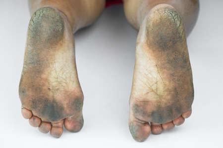 pieds sales: pied sale ou talons fendill�s isoler sur fond blanc, de la sant� m�dicale ou les pieds du peuple, un centre m�dical pour les talons ou pieds. Banque d'images