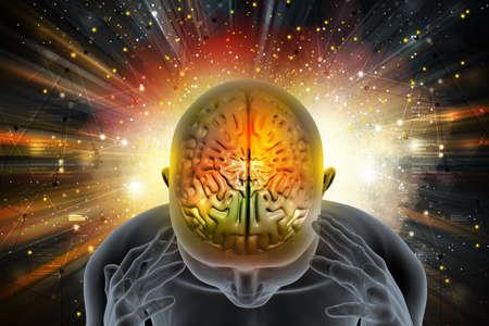 headaches: Man suffering migraine Stock Photo