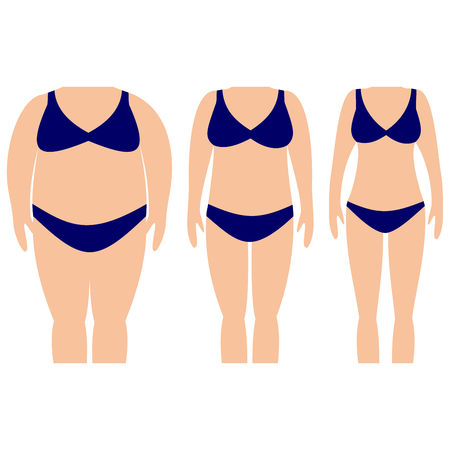 Vector illustration of woman silhouettes with light skin. Weight loss and tummy tuck plastic surgery in woman. Illustration