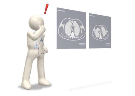질병의 발견이 흰색 배경으로 컴퓨터 생성 이미지입니다