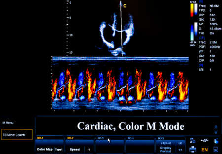 Modern echocardiography (ultrasound) machine monitor. Colour image. New hospitl equipment. Cardiac, Colour M Mode. Stock Photo